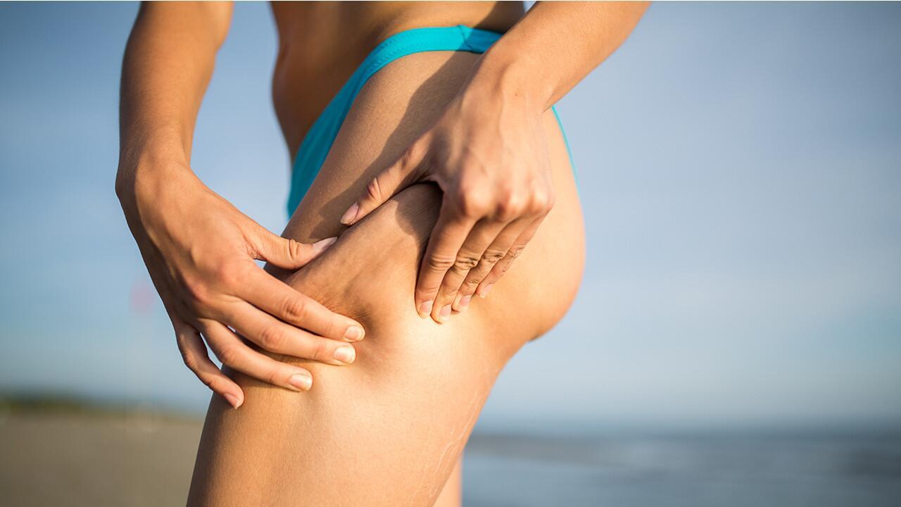 Durch sport weg cellulite cellulite